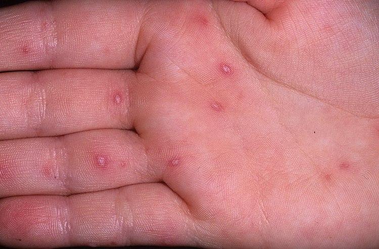 Сыпь на ладонях и ступнях у ребенка в виде прыщиков, волдырей или пятен, фото с пояснениями