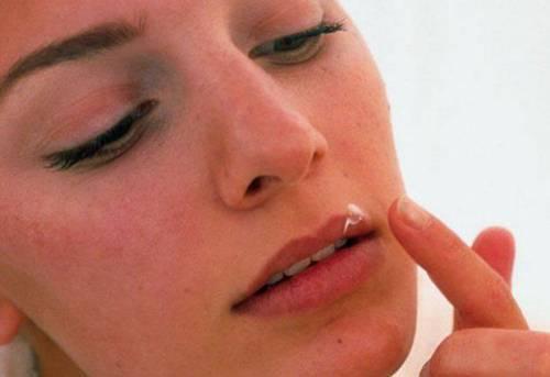 Причины образования жировиков на губах